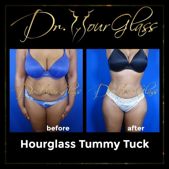Can you guess why most women prefer the Hourglass Tummy Tuck today? Well, since a lot of women have a problem when it comes to their abdominal area this procedure is very effective in eliminating excess fat deposits. Also, you can expect that this technique will sculpt your body into an hourglass shape that you always wanted.