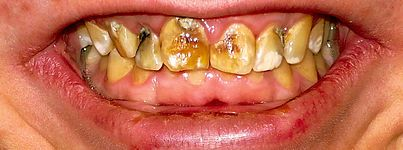 Dental fluorosis// Dental fluorosis, also called mottling of tooth enamel, is a developmental disturbance of dental enamel caused by excessive exposure to high concentrations of fluoride during tooth development.  In its most severe form, tooth appearance is marred by discoloration or brown markings. The enamel may be pitted, rough and hard to clean. The spots and stains left by fluorosis are permanent and may darken over time.