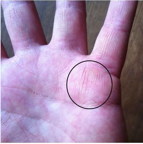 gifted healer markings