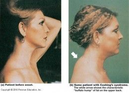 Woman diagnosed with Cushing's syndrome. Left, before onset