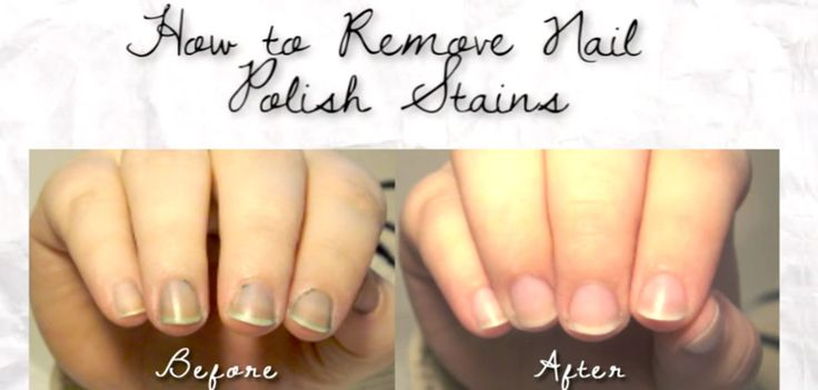 How To Remove Nail Polish Stains Easily