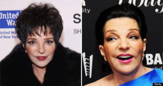 Liza Minnelli Plastic Surgery Before And After Photos #entertainment #plasticsur…