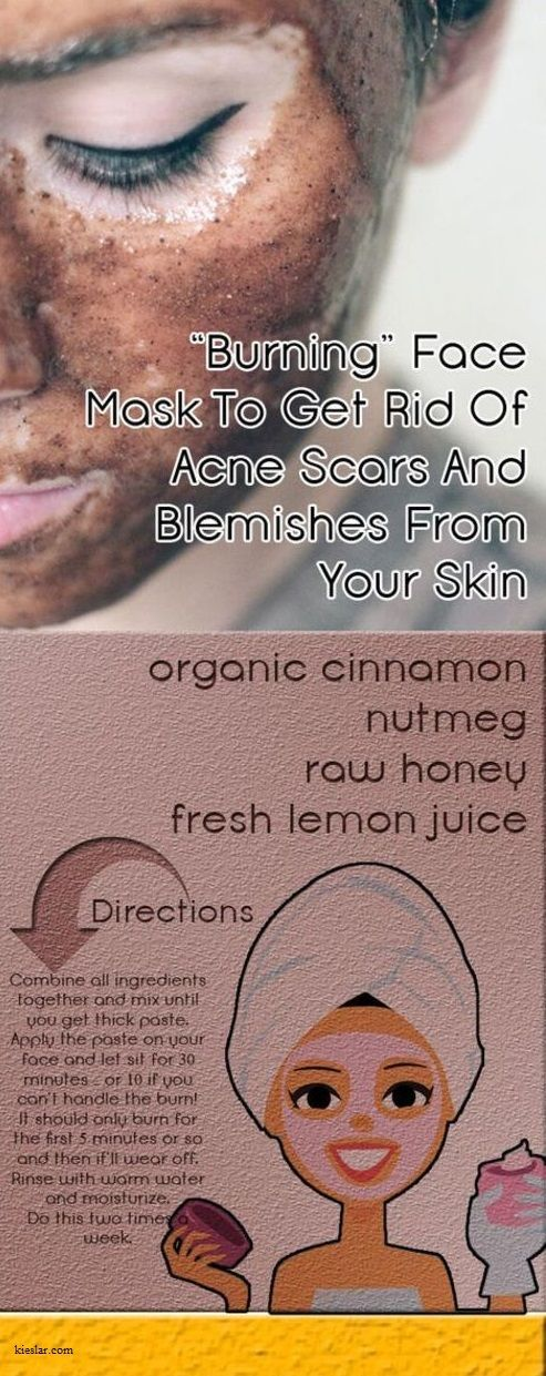 Face mask to get rid of Acne & Blemishes