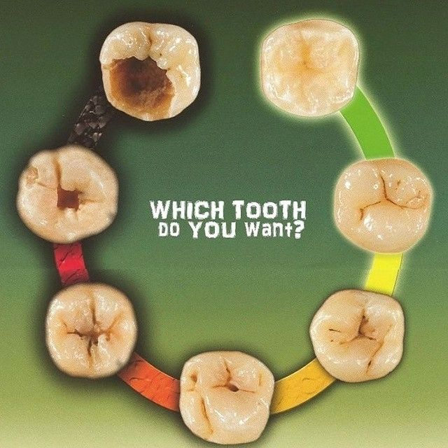 Tooth decay is a gradual process which worsens over time. Spot the warning signs