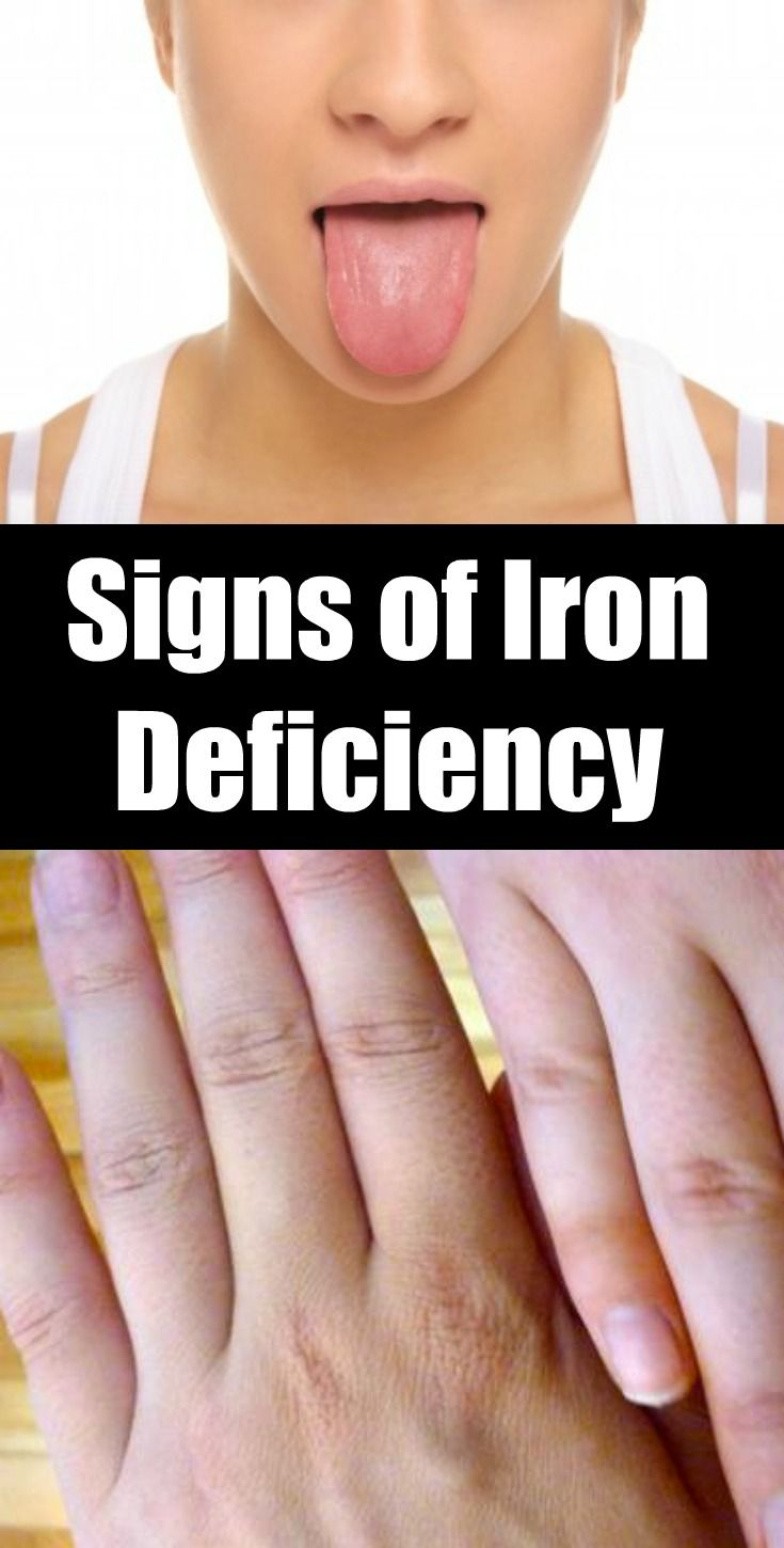 Best 25+ Signs Of Iron Deficiency Ideas On Pinterest. Ipod Screen Repair Denver What Is Windows Vps. Locksmith In Concord Ca Contract Law Attorney. How Long Do Speeding Tickets Affect Insurance. Divorce Lawyers In Dayton Ohio