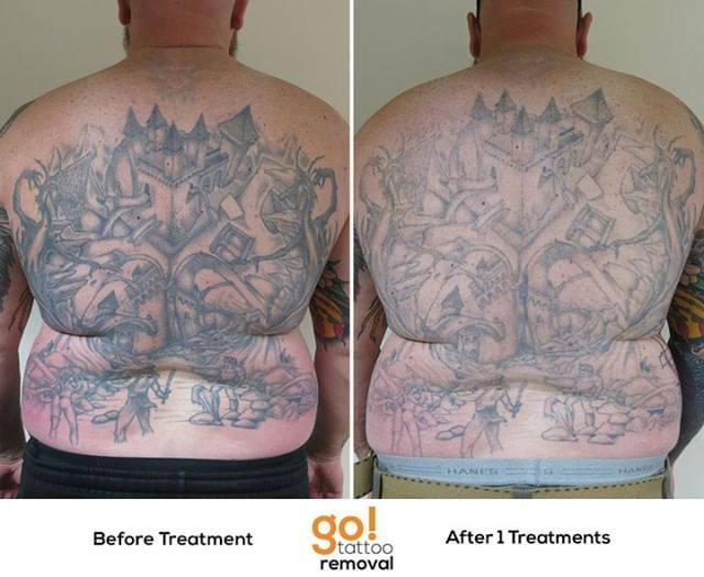 Tattoo Removal Swelling