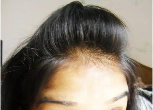 Puff Hairstyle DIY - Step By Step Tutorial | Diy hairstyles easy, Easy hairstyles, Diy hairstyles