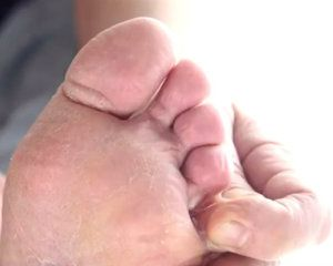 Remedios caseros para el pie de atleta (infección de hongos en los pies) #remedioscaseros #hongos #pieatleta