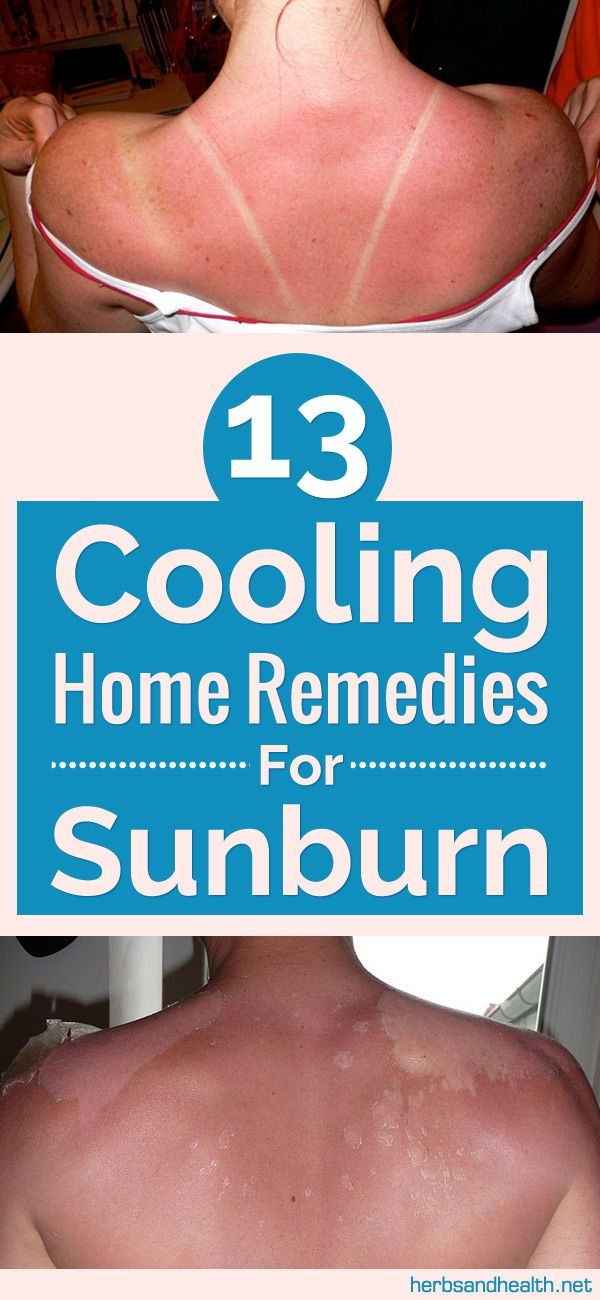 13 Cooling Home Remedies For Sunburn	►►	http://www.herbs-info.com/blog/13-cooling-home-remedies-for-sunburn/?i=p