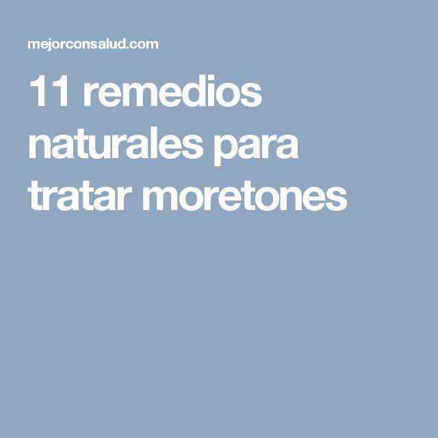11 remedios naturales para tratar moretones