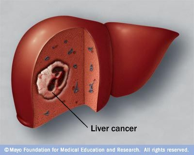 October is National #LiverCancer Awareness Month. The American Cancer Society estimates about 33,190 new cases of primary liver cancer and intrahepatic bile duct cancer will be diagnosed in 2014 and about 23,000 people will die of these cancers. Learn more about this disease.