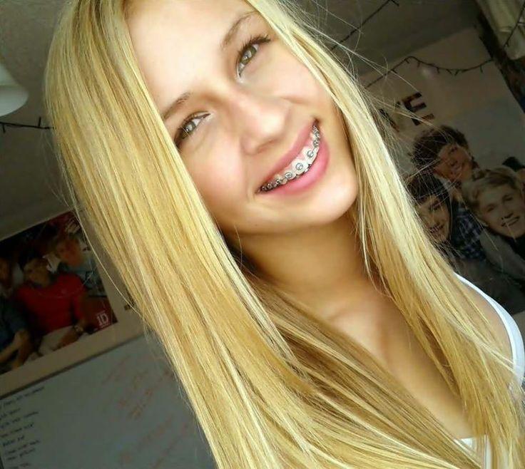 226 Best Braces Images On Pinterest  Braces, Teeth Braces -1376