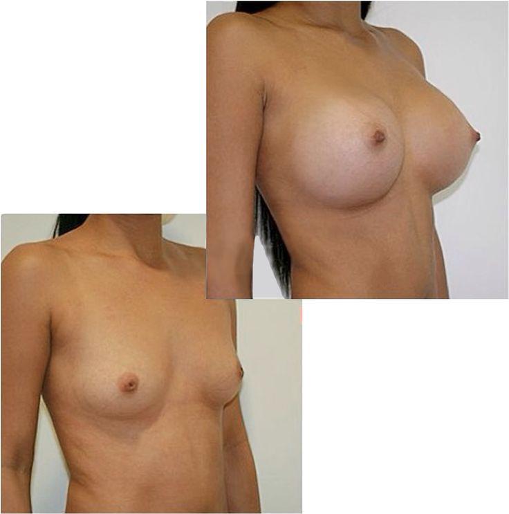 Implantes de implantes mamarios
