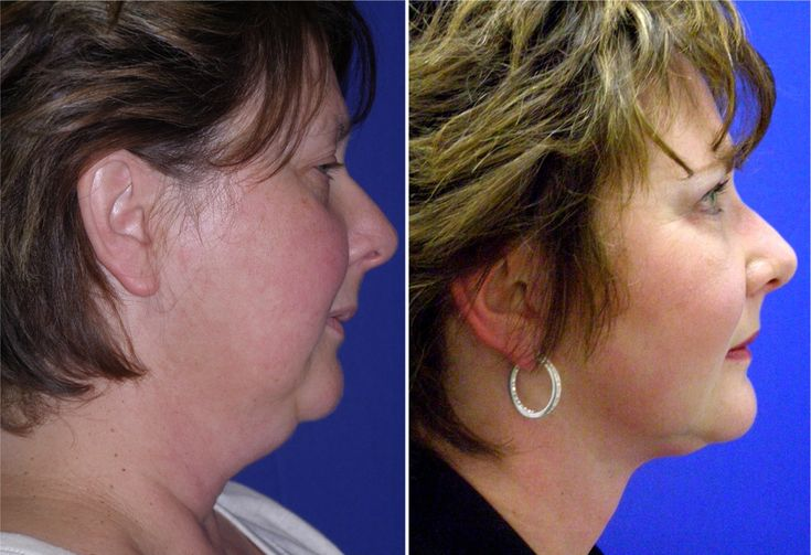 Frumpy to Classy!  Partial Face Lift , Neck Liposuction