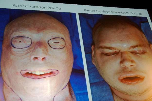 EP Human: Complexo transplante de face é realizado nos EUA