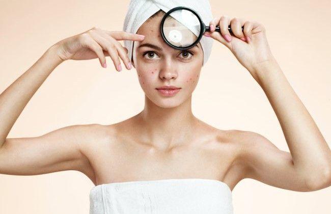 Cum să scapi de coşuri cu ibuprofen | Cosmetică | Unica.ro