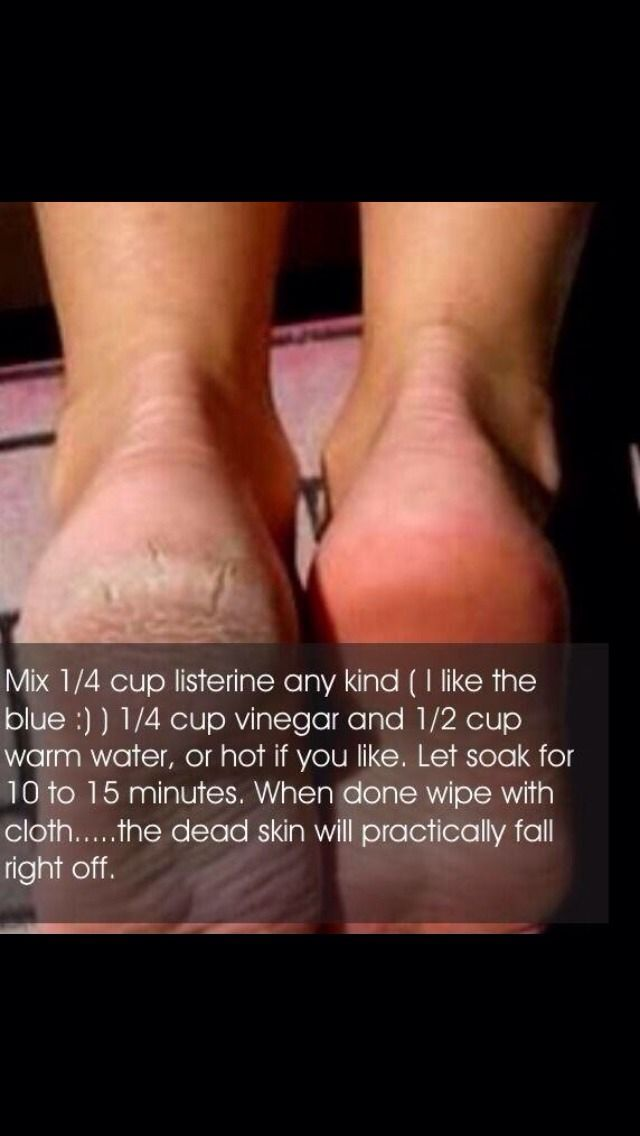How To Get Rid Of Dry Skin On Feet