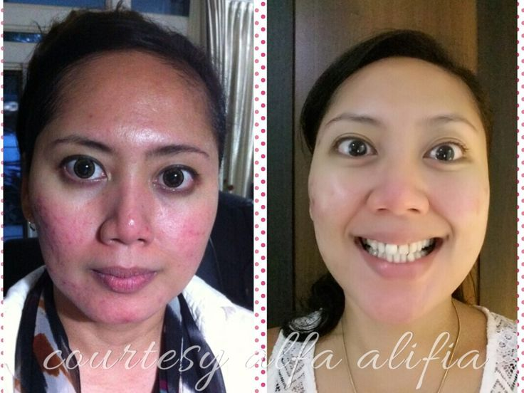 her transformation in 87 days with ageloc youthspan for the first couples of month following with ageloc galvanic spa face & ageloc R2