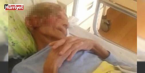 Türkiye onu bu görüntülerle tanımıştı: Yüzündeki yaraların nedeni... : Antalyada özel bir huzurevinde yüzü yara içinde olan yaşlı adam Antalya Valiliğinin talimatı doğrultusunda görevlendirilen doktor heyeti tarafından muayene edildi. Yaşlı adamın ileri evre cilt kanseri ve yüz felci olduğu anlaşıldı.  http://ift.tt/2dBwJbR #Türkiye   #Antalya #Yaşlı #adamın #edildi #muayene
