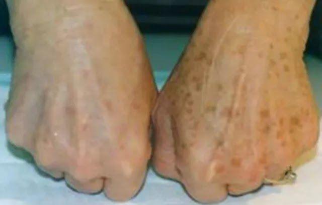 Ya sea por el sol, el paso del tiempo o la falta de cuidados, las manchas en las manos aparecen...
