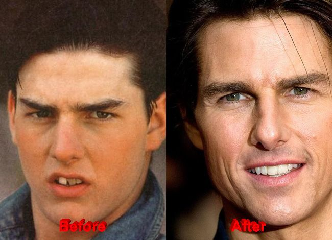 Famous Plastic Surgery - Tom Cruise Plastic Surgery before ...