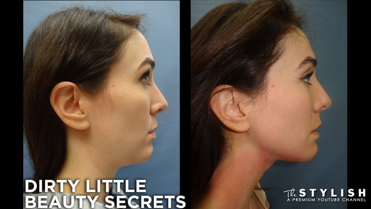 LUNCHTIME NECK LIFT Not exactly skin care, a natural procedure or a DIY but this is still incredible