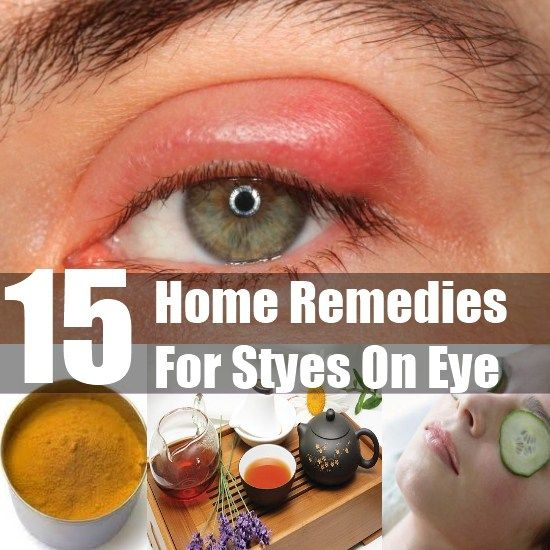 How To Cure A Stye In The Eye Naturally