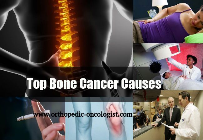 bone cancer the cause and effect Home → treatment and side effects → treatment side effects → bone and joint pain bone and joint pain save as favorite  arthritis can cause bone and joint pain cancer spreading (metastasizing) into a bone also causes pain some breast cancer treatments may cause bone or joint pain: chemotherapy.