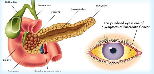 Pancreatic Cancer Surgery in India with Indian Medguru Consultant