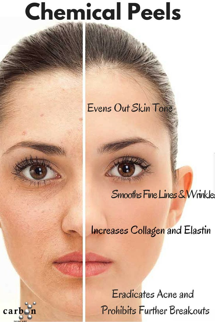 #ChemicalPeel - #Chemical #Peel for #Acne #Scars - #ChemicalPeelsInformation