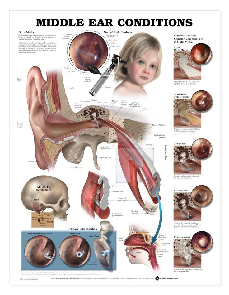 Middle ear condition