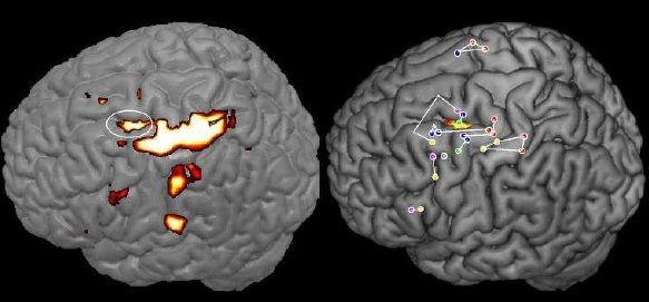 localisation des zones du cerveau impliquées dans le geste d'écriture