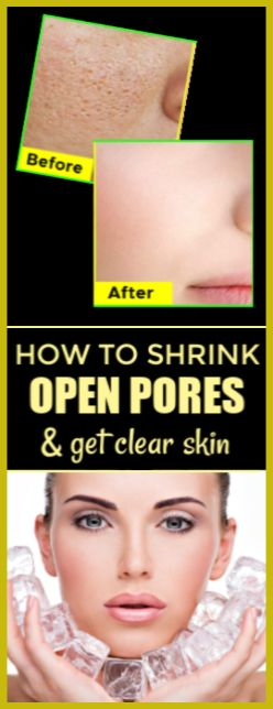 Shrink Open Skin Pores and Get Clear Skin With Ice Cubes !!