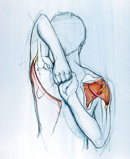 Ограниченная подвижность плечевых суставов
