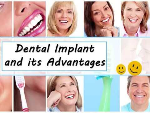 Stop worrying about decayed #tooth roots or lost teeth and get #dental-implants now to enjoy a gorgeous smile! Contact Vibrant Smiles Dental in #Clifton,NJ for authentic and reliable #dental implants treatment.