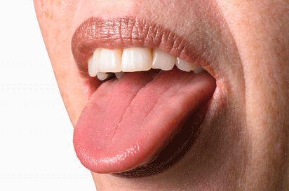Belegte Zunge Reinigen