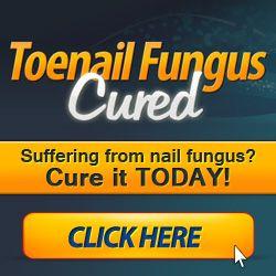 Fungal Infection? (#1 FINGERNAIL FUNGUS TREATMENT) Toenail Fungus Cure  250x250