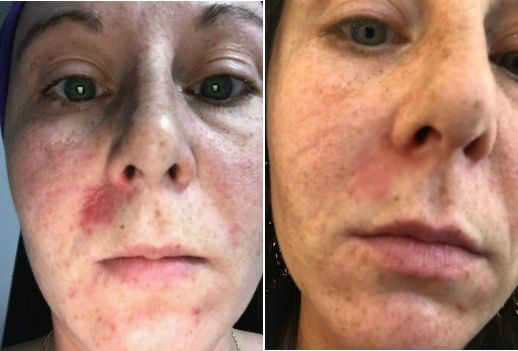 symptoms of dry skin on face