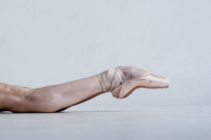 Pies de una bailarina de ballet maltratados con moretones