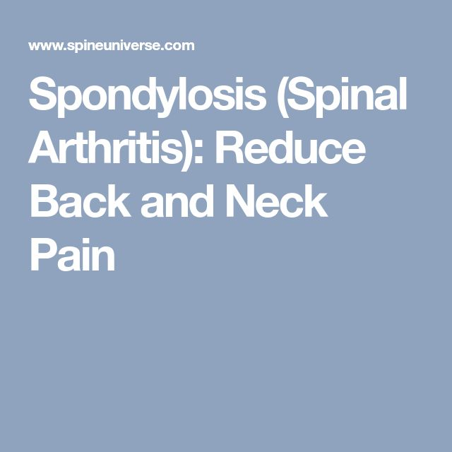 Spondylosis (Spinal Arthritis): Reduce Back and Neck Pain