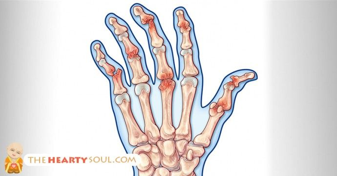 HOW TO REVERSE AUTOIMMUNE ARTHRITIS AND INFLAMMATION IN YOUR HANDS, FEET AND BACK