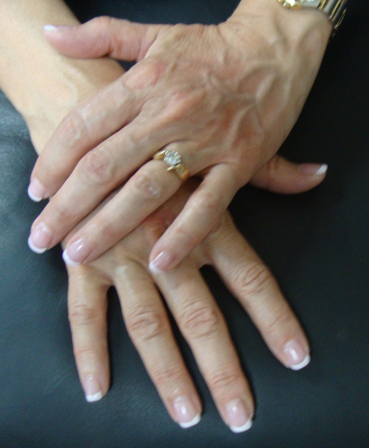 Airbrushed Shellac French Manicure with Acrylic Natural Nail Overlay