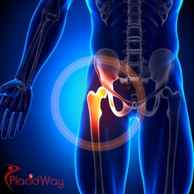 Here we can all talk about the latest news and information about orthopedics. We can freely share our thoughts and experiences in coping with this problems, like the knee and hip.