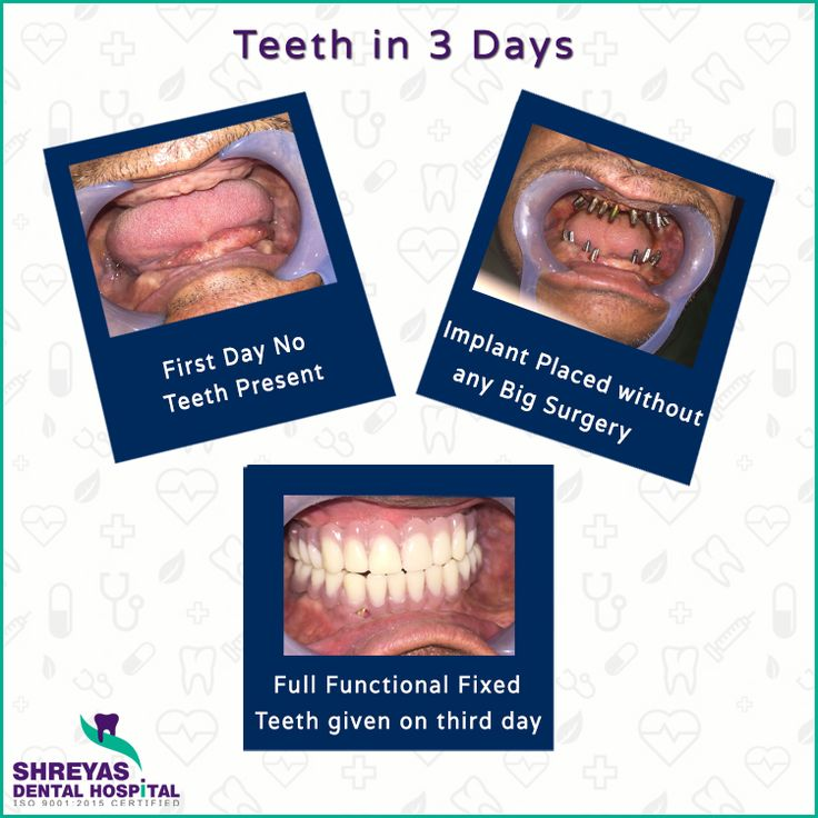 Get Permanent Teeth in 3 Days by Dr. Kiran Patel at Shreyas Dental Hospital!!  - No More Waiting - No More Sinus Lift - No More Bone Graft  Book your Appointment: 📞 +91-9712994608 | 🌐 www.shreyasdental.in  #InstantDentalImplant #DentalImplantsIn3Days #DrKiranPatel