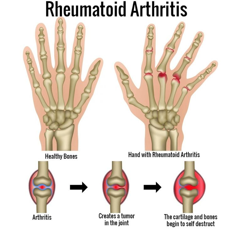 What Are The Signs Of Rheumatoid Arthritis Check more at http://www.nhprimecare.org/what-are-the-signs-of-rheumatoid-arthritis/