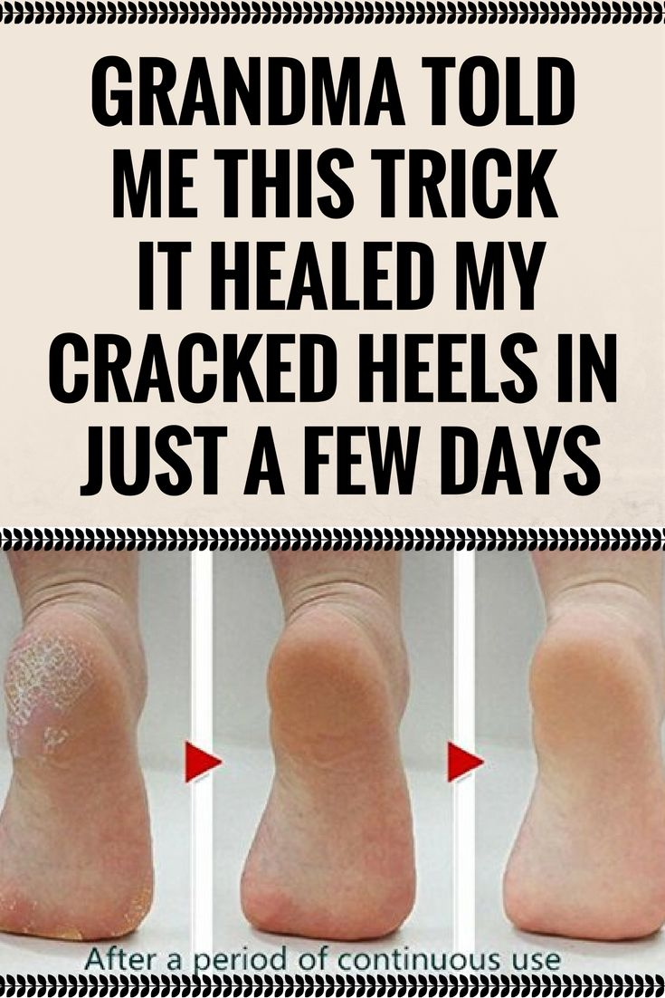 GRANDMA TOLD ME THIS TRICK. IT HEALED MY CRACKED HEELS IN JUST A FEW DAYS\';