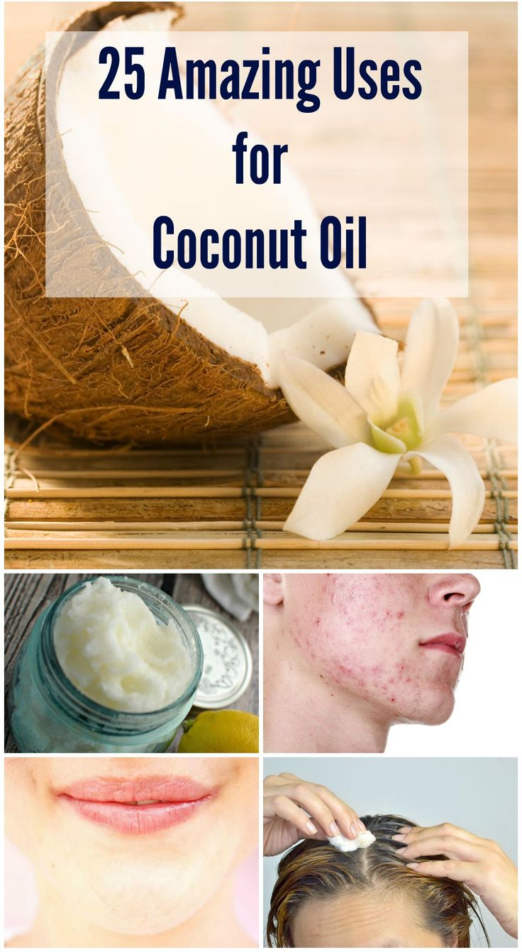 There are many uses for coconut oil. It can kill a wide range of infections, and may also help your body get rid of parasites like lice and tapeworms. It can kill certain viruses, and your body can easily digest it to absorb all its nutrition. And of course it is natural and side-effect free. Here are 25 Amazing Uses for Coconut Oil - Selfcarers