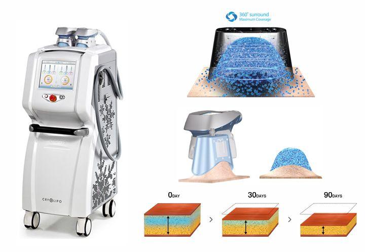 Τα VF Laser Clinics είναι εξοπλισμένα με το προηγμένο σύστημα επιλεκτικής κρυογλυπτικής CRYOLIPO II® 360, το πλέον ενδεδειγμένο και ασφαλές, για μόνιμη μείωση του τοπικού πάχους με τη μέθοδο της κρυολιπόλυσης.