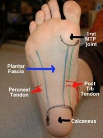 The heel is another common area for Plantar Fasciitis pain to show up.