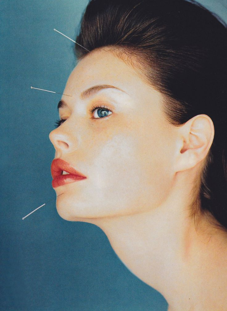 Photographed by Kim Andreolli, Vogue, September 1997. New York City acupuncturist Shellie Goldstein explains five specific ways that acupuncture can provide a beauty boost from the inside out: here.